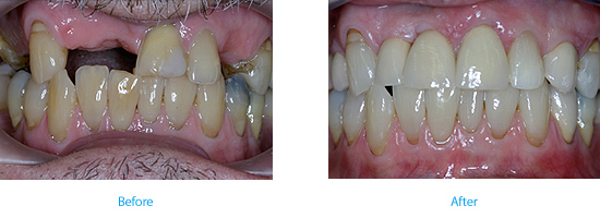 implant bridge Wyndham House dentist in Vale of Glamorgan