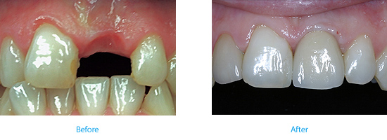 implant crown bridge Wyndham House dentist in Vale of Glamorgan