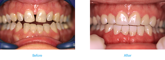 dental veneer at Wyndham House dentists in Vale of Glamorgan
