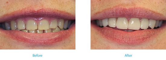 worn-teeth Wyndham House dentists in Vale of Glamorgan